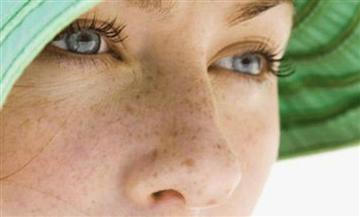 Manchas en tu rostro: Estas 6 recetas caseras pueden eliminar esas imperfecciones