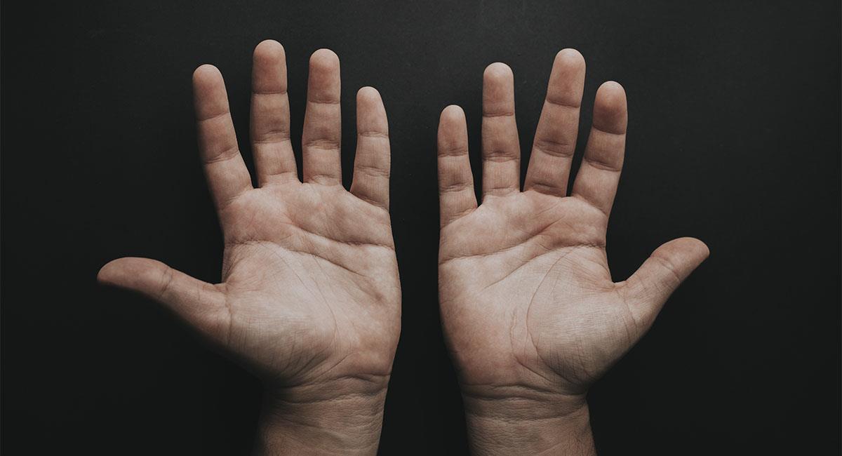 ¿Por qué se pelan las manos?. Foto: Unsplash