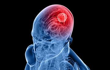 Cáncer: Buena noticia para el tratamiento de tumores cerebrales más agresivos
