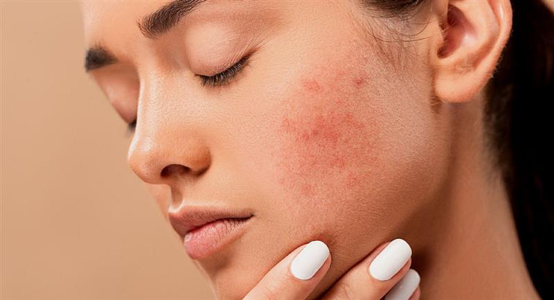 ¿Qué hacer para reducir el acné del periodo?. Foto: Pixabay